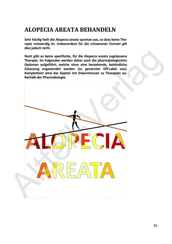 Leseprobe_Alopecia_20181007_WZ-14